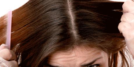 pregled kose